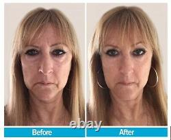 BEST Instant FACELIFT serum x5 Bottles For $199! Pay 4- get 1 FREE